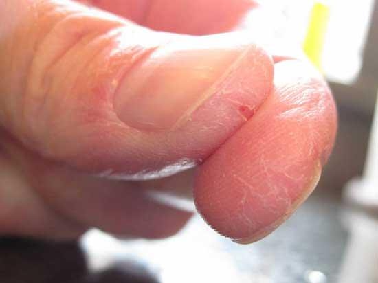 Растворитель, попадая на кожу, вызывает деградацию эпидермиса, следствием которой являются трещины и язвы.